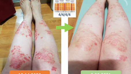 Skin and Immune System Recovery