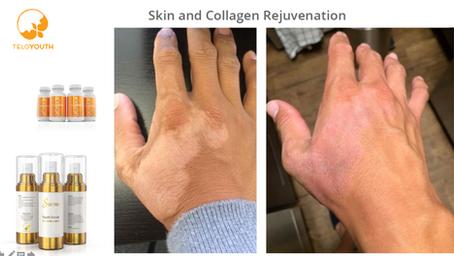 Skin Rejuvenation & Immune Balance