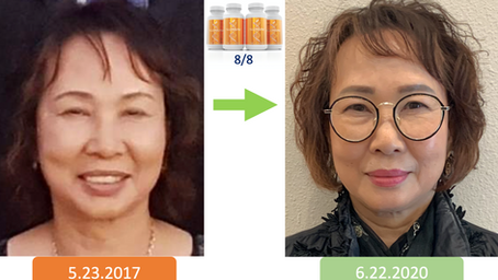 Hemoglobin Cholesterol LDL Triglycerides TSH Rejuvenation: Sharon K. at age 71
