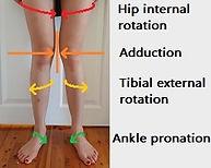 characteristics-of-knee-valgus.jpg