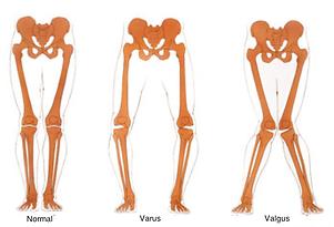 normal varus valgus skeleton.png
