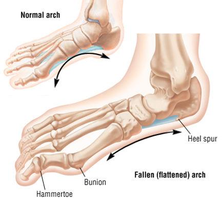 fallen arch bunion and heel spur.jpg
