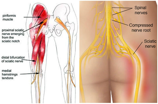 bum and legs sciatic nerve and muscles.j