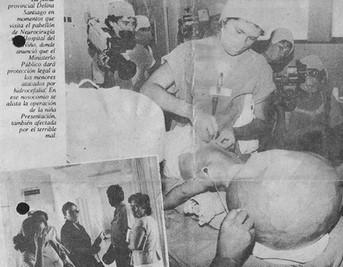Pepito, el niño Hidrocefalico 1986-Lima-Perú
