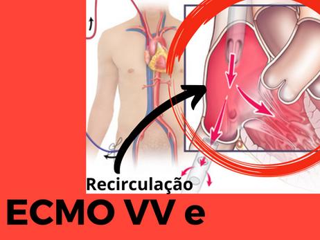 Recirculação de sangue entre as cânulas da ECMO VV e Hipoxemia: racional, diagnóstico e conduta.