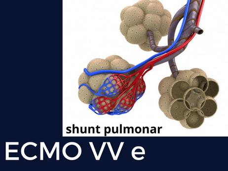 Shunt pulmonar e hipoxemia na ECMO VV: o racional e a conduta.