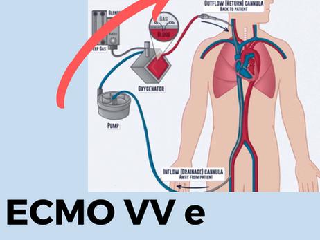 Hipoxemia severa durante ECMO venovenosa: quais são as principais causas?