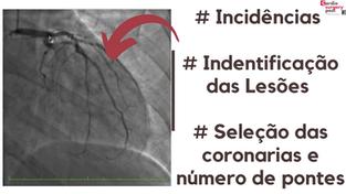 Conceitos básicos de Coronariografia: uma análise prática.