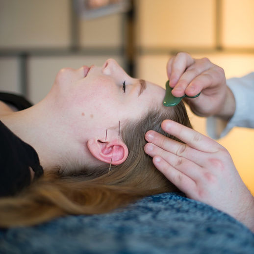 Patient receives facial gua sha treatment and has acupuncture needles placed in her ears.