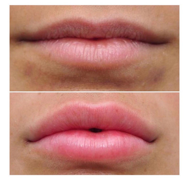 PlasmaLift Lip Enhancement