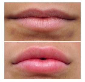 PlasmaLift Lip Enhancement