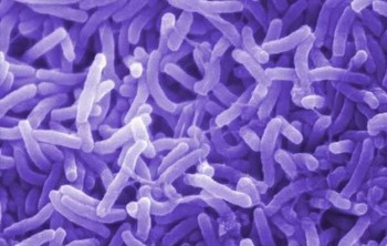The cholera bacterium (Vibrio cholerae) is easily confirmed in a laboratory–and has been repeatedly for stool samples from victims in Sudan