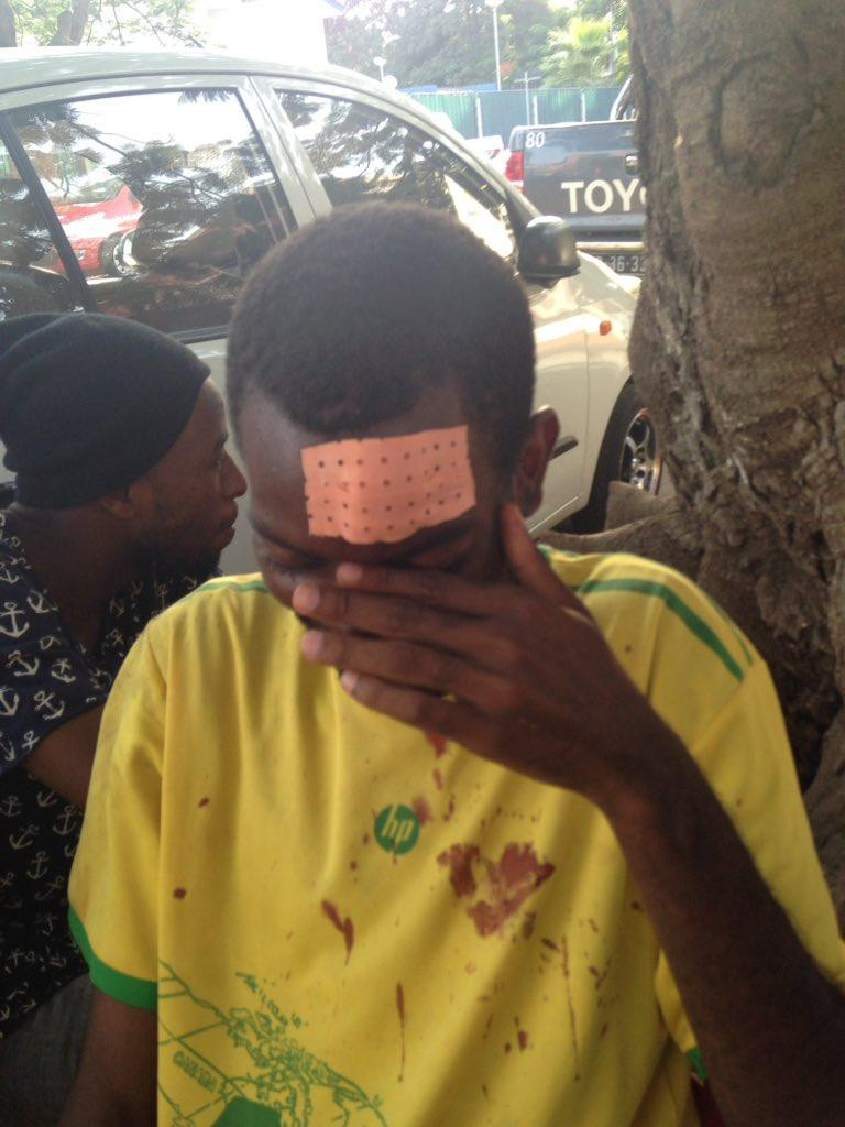 """Samussuku"" Chiconda required stitches on his forehead after police officers beat him with batons, Luanda, February 24, 2017. © 2017 Luaty Beirao"