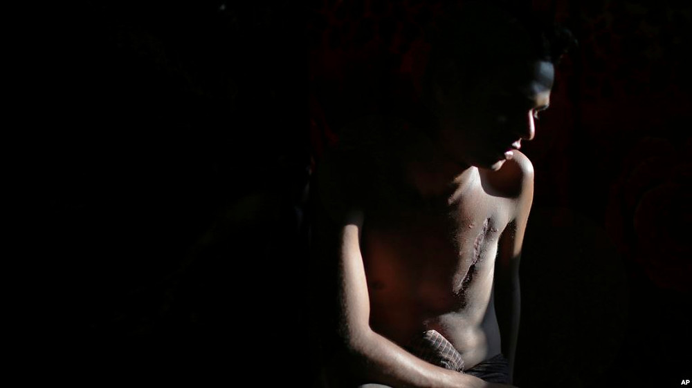 In this Nov. 24, 2017, photo, Mohammadul Hassan is photographed in his family's tent in Jamtoli refugee camp in Bangladesh. Hassan still bears the scars on his chest and back from being shot by Myanmar soldiers who attempted to kill him.