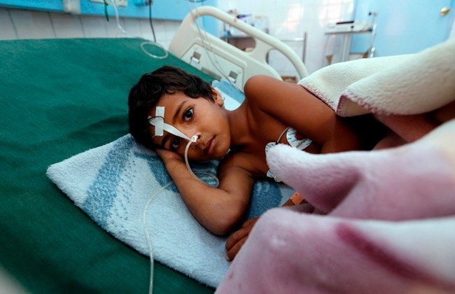 A Yemeni child suffering from diphtheria receives treatment at a hospital in the capital Sanaa on November 22, 2017. / AFP / MOHAMMED HUWAIS