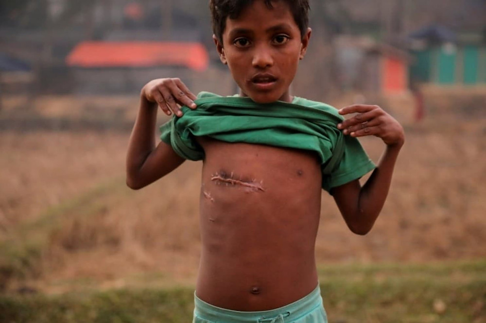A 7-year-old Rohingya refugee shows a bullet wound on his chest at the Kutupalong refugee camp near Cox's Bazar, Bangladesh, on Tuesday. (Marko Djurica/Reuters)