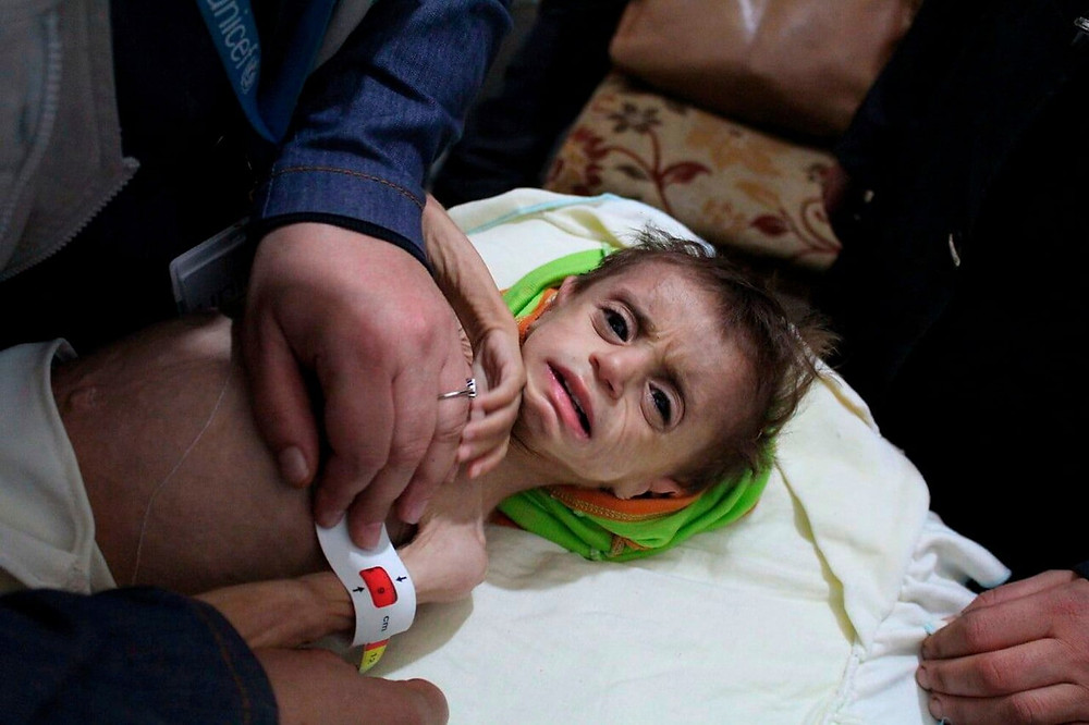 In this file photo provided on Monday, October 30, 2017 by UN Office for the Coordination of Humanitarian Affairs (OCHA), shows a severely malnourished child at the al-Kahef hospital in Kafr Batna, Eastern Ghouta near Damascus, Syria. Aid groups say the Syrian government is allowing the evacuation of nearly 30 critically ill Syrians from a besieged suburb of Damascus, where hundreds of people requiring medical treatment have been prevented from reaching hospitals minutes away. The government recently tightened its siege of eastern Ghouta, home to some 400,000 people, leading to severe shortages of food, fuel and medicine as winter sets in. (UN OCHA via AP, File) (Associated Press)