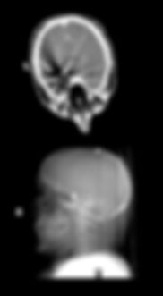 Two views of same indvidual with shrapnel in brain, and brain swelling