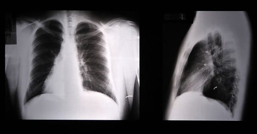 Chest x-ray: 2 views of the same individual