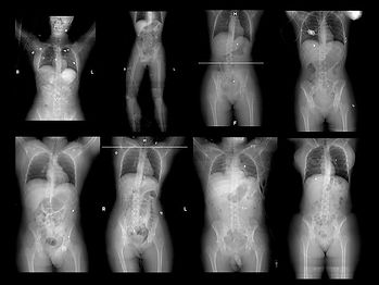 radiographs of adult terror attack victims