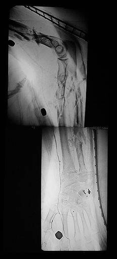 Artery damage, smashed hand and arm