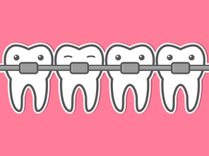 Which Type of Braces is Right for Your Child