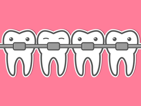 The Health Benefits of Orthodontic Treatment