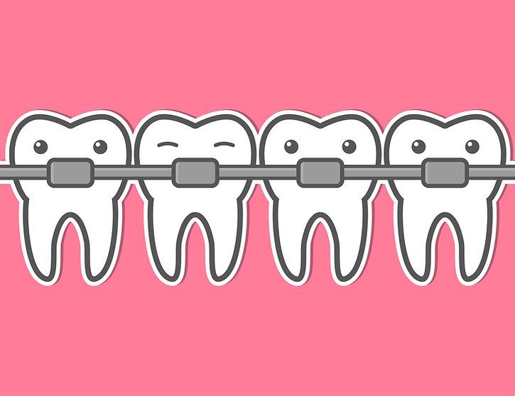 braces cartoon.jpg