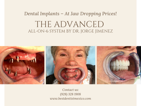 👨⚕️ 👩⚕️ 🗣 The All-On-6 implant may be perfect you if you meet any of these criteria: