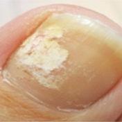 onychomycosis A