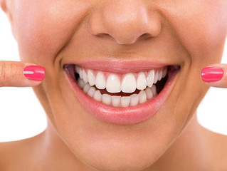 How Safe Is Tooth Whitening?