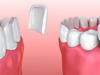 Veneers or Crowns? What to do?