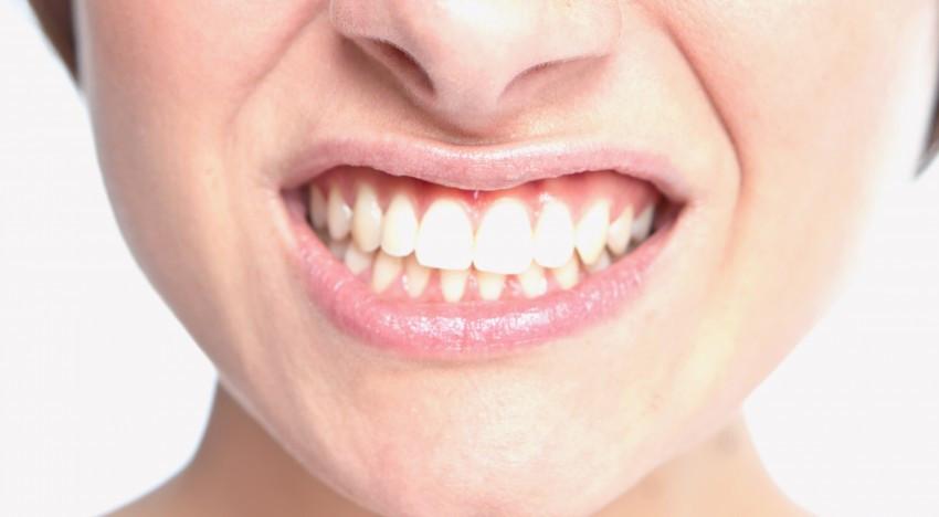 dentist st. peters and st. charles missouri