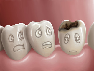 All About Cavities