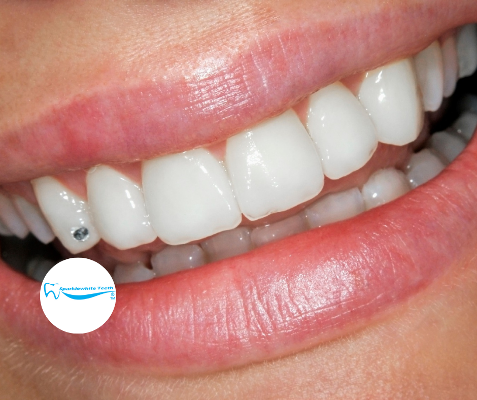 In-clinic Teeth Whitening
