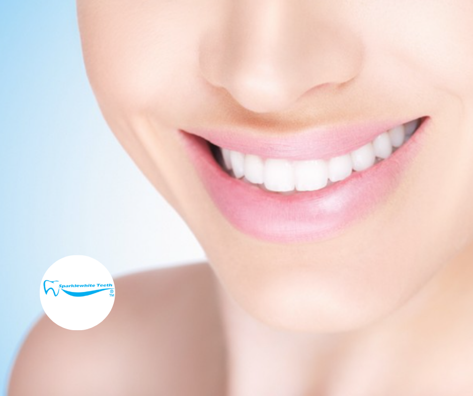 In-clinic Teeth Whitening + Home Kit