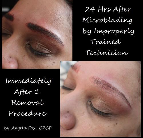 emergency removal brows.jpg