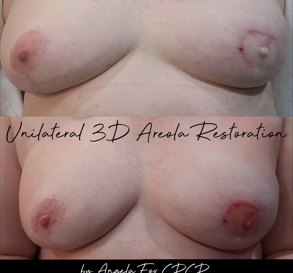 paramedical breast tattooing.jpg