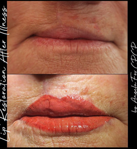 lip reconstruction tattooing.jpg