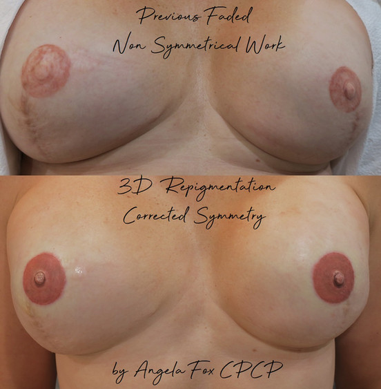 replace areola and nipple breast cancer.