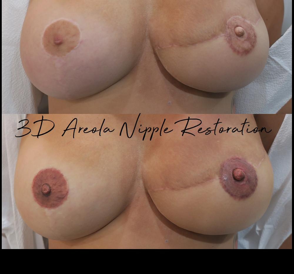 3D areola restoration tattoo houston tex