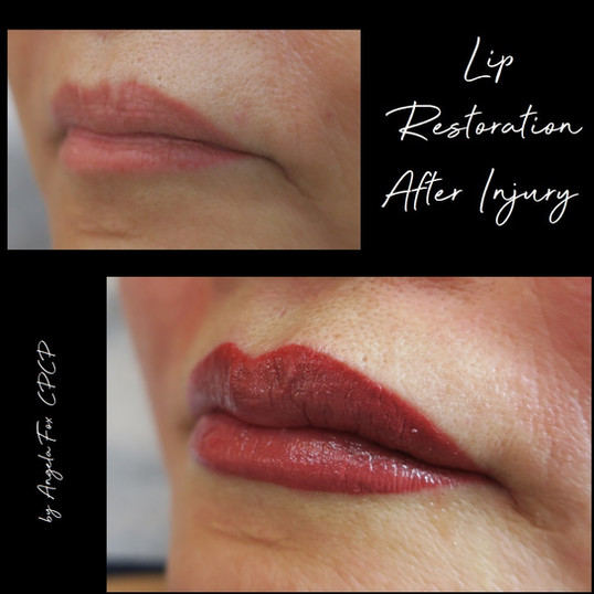 Lip resoration after injury.jpg