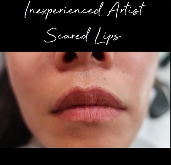 tattoo lip liner removal.jpg