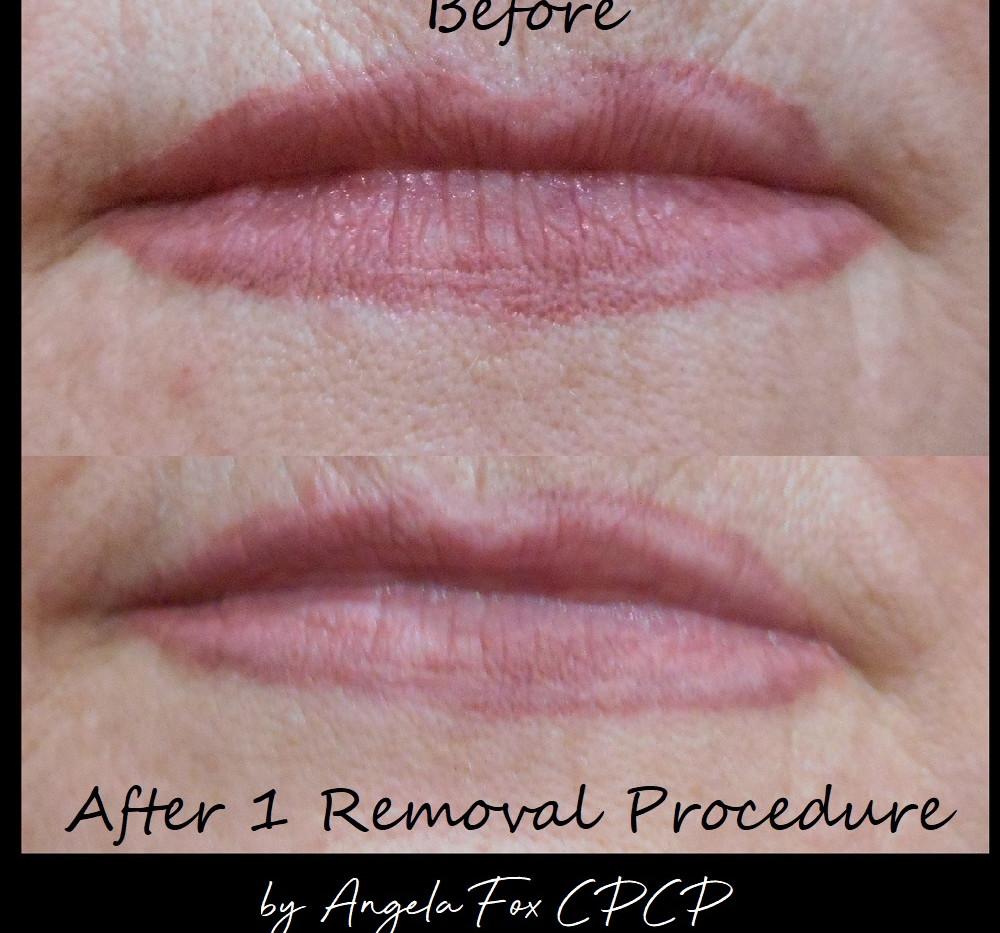 Lip Liner tattoo removal.jpg