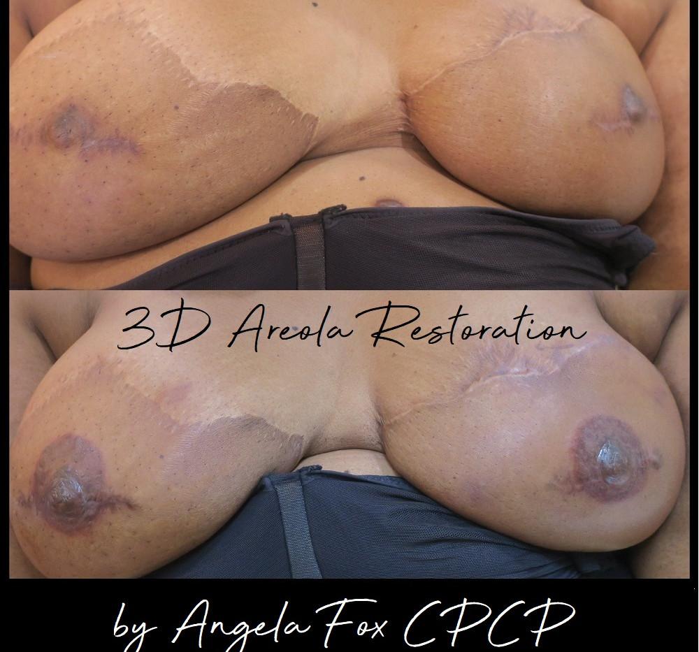 breast cancer areola tattoo training hou
