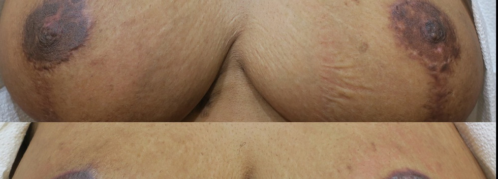 Areola Restoration after reductions.jpg
