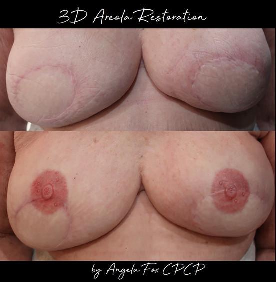 3d areola nipple tattooing.jpg