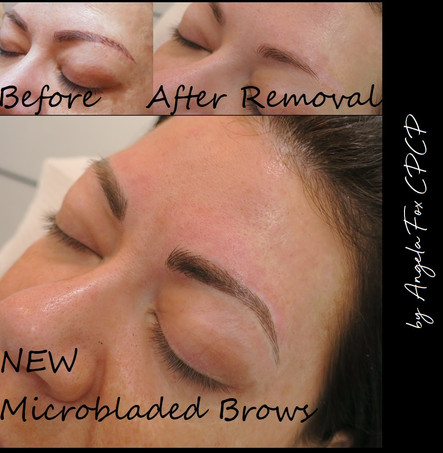 microblading removal and correction hous