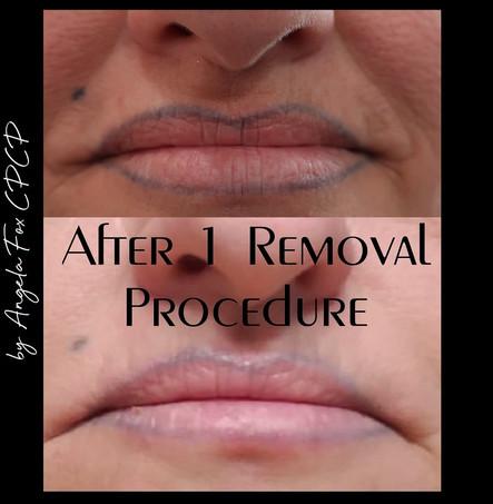 lip liner saline tattoo removal houston