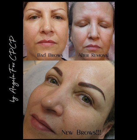 tattoo eyebrow removal houston dallas au